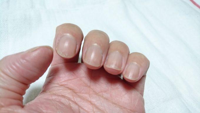 エテュセ クイックケアコートを使い続けるうちに傷んでしまった爪の写真。